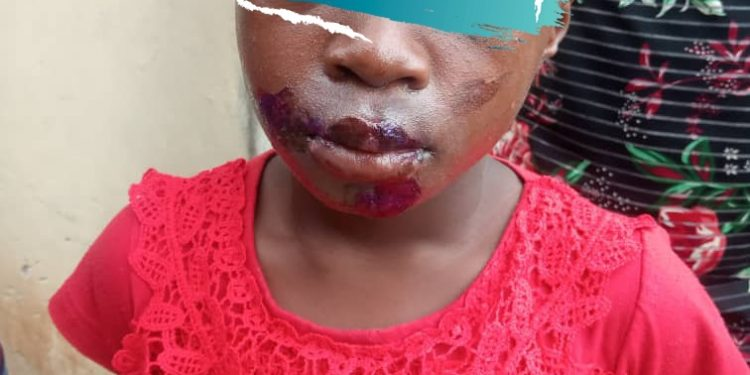 A POLICE OFFICER'S WIFE JAILED FOR INFLICTING INJURIES ON  9 YEAR OLD HOUSE-MAIDS MOUTH